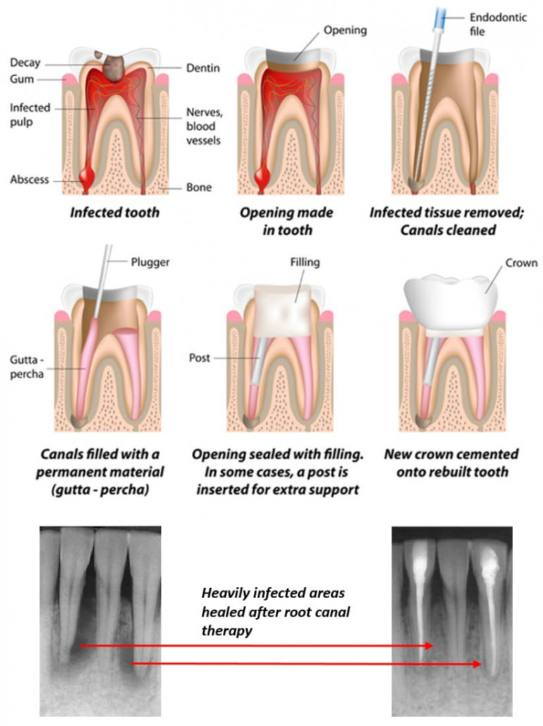 Root Canals | Traders Point Dental
