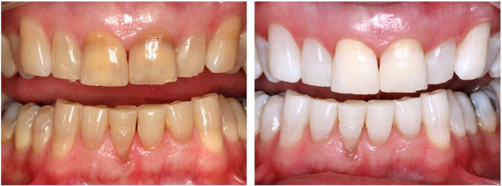 Teeth Whitening Traders Point Dental
